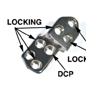 2.7 TPO/DPO Locking Plate, 20 Right